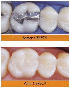 CEREC Knoxville, TN Dean Cosmetic Dentistry