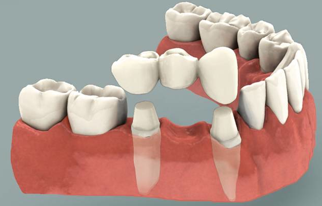 Affordable Same Day Dental Bridges Possible