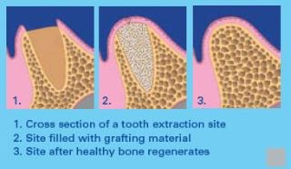 Tacoma_Dentist_Bone_Graft_Stages-320x186 (1)