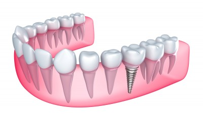 Dental implants are secure, stable and a fantastic replacement for their own tooth