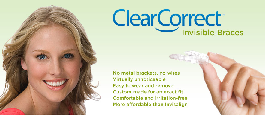 Clear Braces - Invisible Braces at Dean Cosmetic Dentistry Knoxville, TN