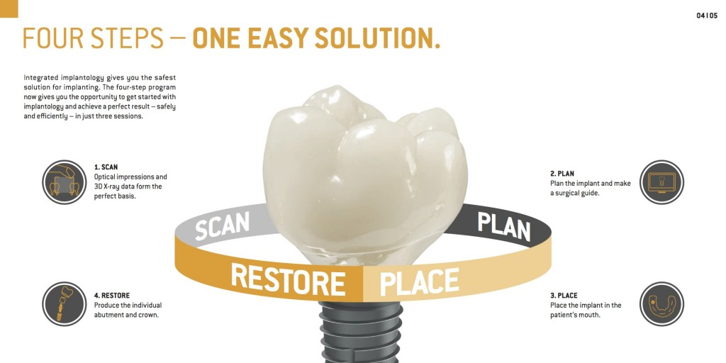 Dental implants are changing the way people live, You Have Options