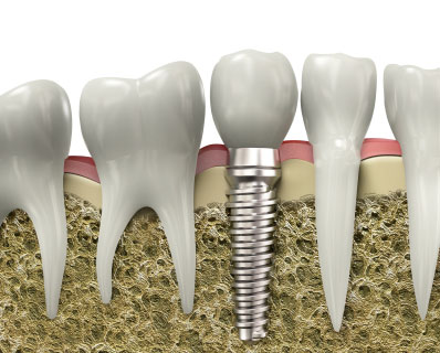 Dental implants are as durable as original teeth and can last a lifetime
