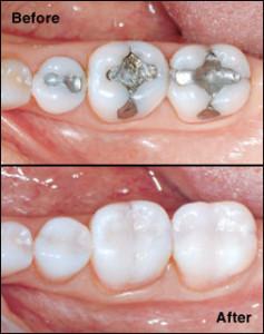 Cerec Dentistry