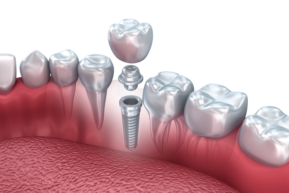 Loose tooth?  Missing tooth?  What you need to know…