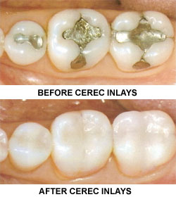 Messages Image(3839871707) - Dean Cosmetic Dentistry