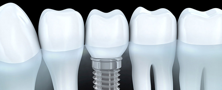 Missing Tooth….Dental implants are changing the way people live!