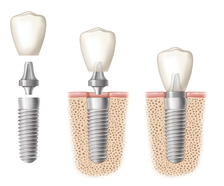 Dental implants are the next best thing to a healthy, natural tooth.