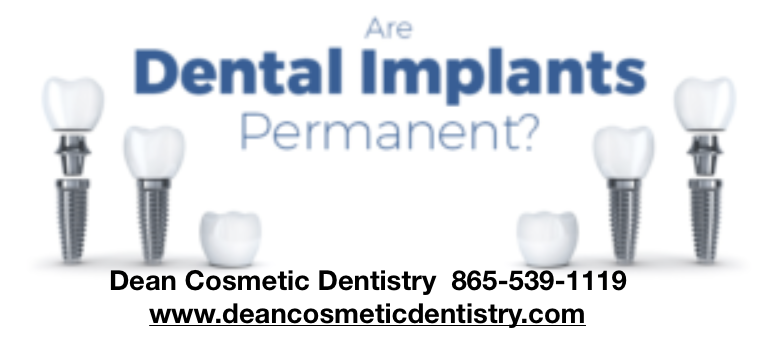 What is the latest technology with Dentures & Implants