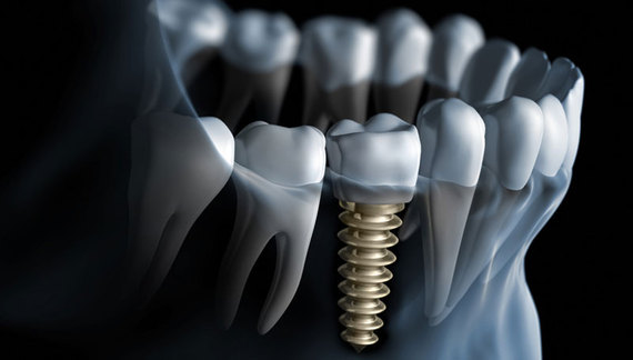 Dean Cosmetic Dentistry Dental implants are the next best thing to real teeth!