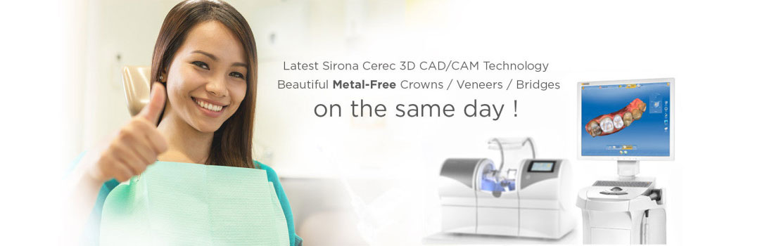 Image result for images of cerec