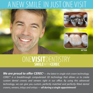 One visit crowns Dean Cosmetic Dentistry