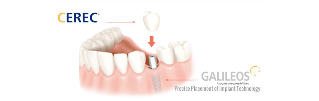 Cerec Galileos Precise PLacement of Implant Technology at Deans Cosmetic Dentistry Knoxville