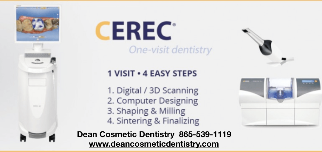 A dental crown in just 2 hours at Dean Cosmetic Dentistry In Knoxville