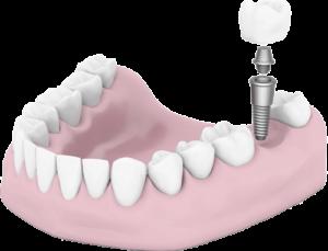 Dean Dental Implant