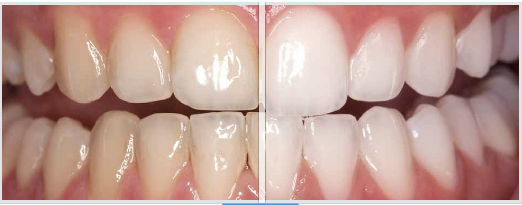 A Whiter More Confident Smile with Opalescence Professional Dental Whitening