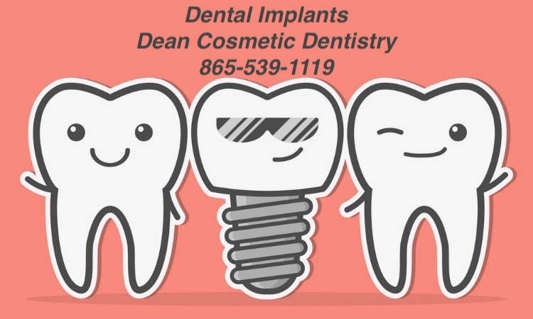 Dental implants are one of the best ways to replace missing teeth