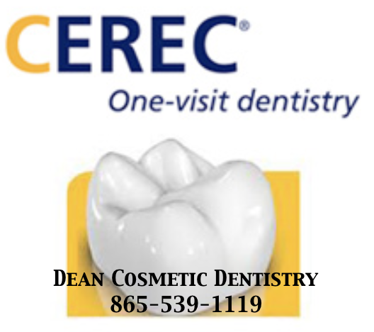 With CEREC technology We Create Crowns, Onlays, and Inlays in a SINGLE VISIT!