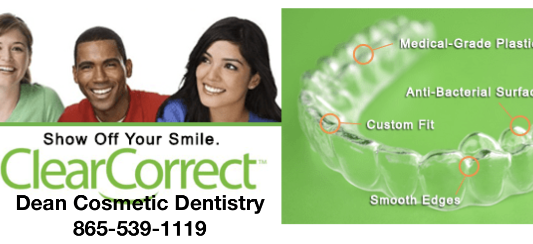 Straighter Teeth Have Never Been Easier With ClearCorrect