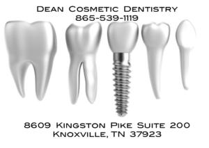 Dental Implants @ Dean Cosmetic Dentistry