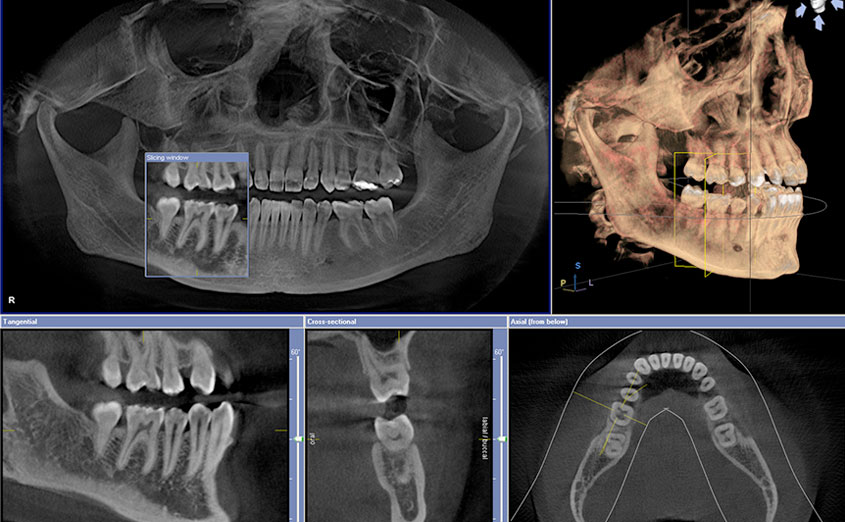 Our Digital X-rays provide several advanced imaging options