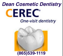 Single visit dental crown technology in Knoxville by Cerec mentor Dr Donnie Dean