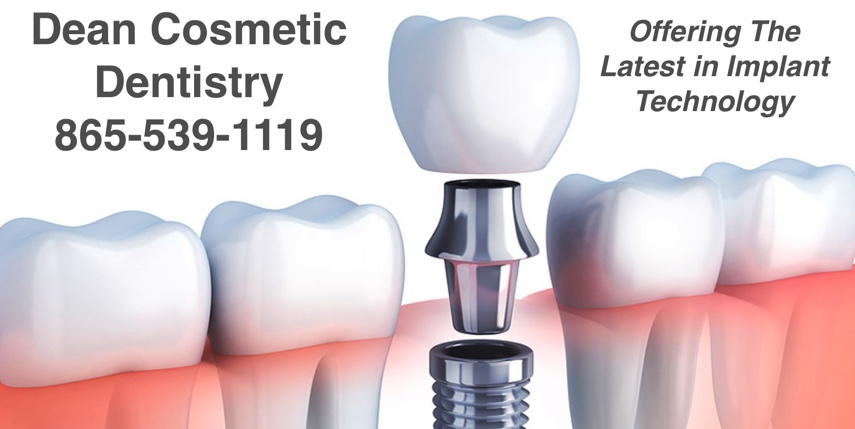No More Living with Missing Teeth Since Dental Implant Technology Exists