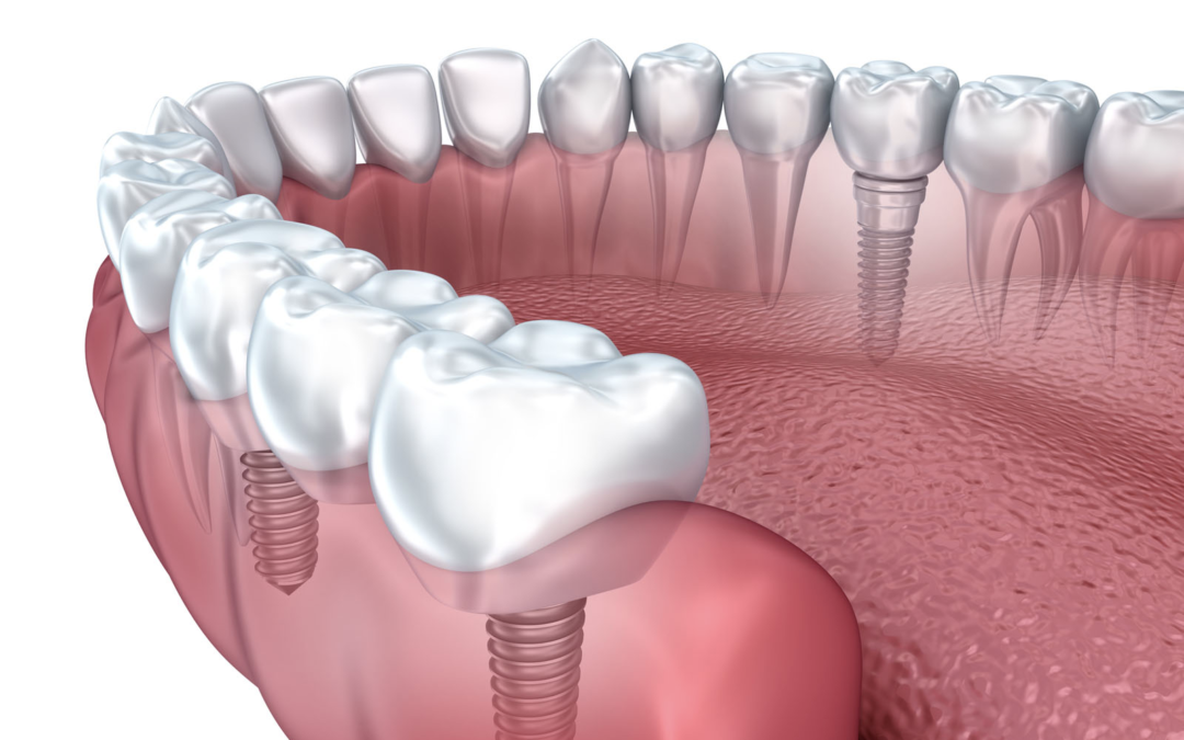 Incredible advantages of dental implants and why they are so popular