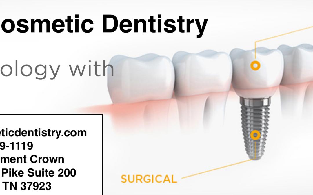 When tooth replacement becomes necessary then dental implants the Smart Choice