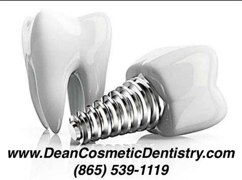 Dental implants are an easy way to restore the natural look of your teeth