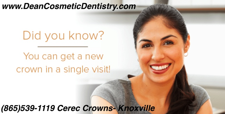 How much do dental crowns cost?