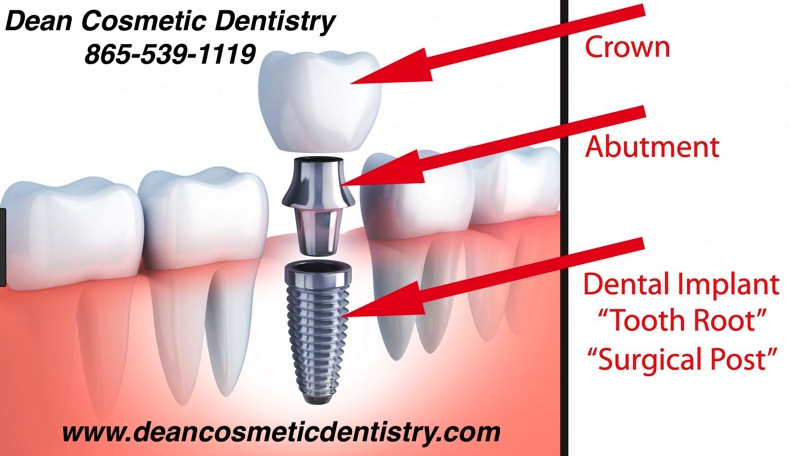 Replace your teeth and reclaim your dental health with dental implants!