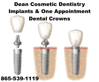 Dental implants help you chew, smile and talk completely naturally