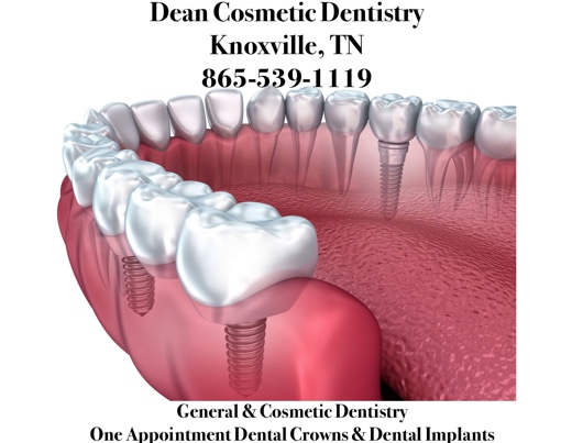 The Advantages of Dental Implants Are Incredible & Long Lasting