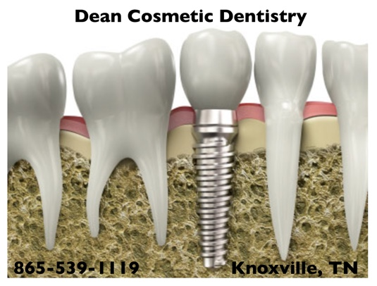 Dental implants are as durable as original teeth