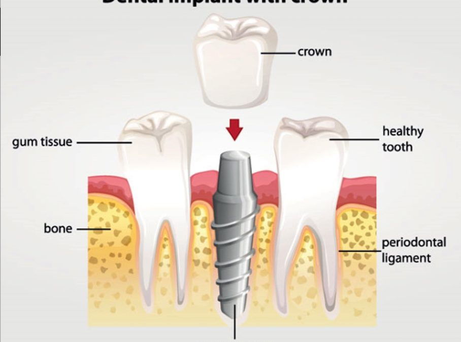 The best option for missing teeth are dental implants