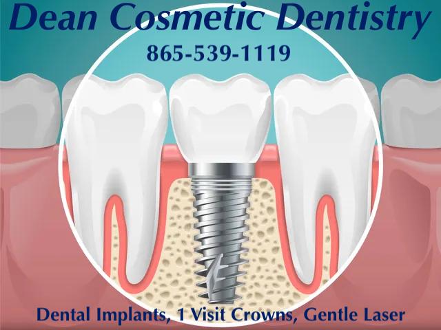 Dean Dental Implants