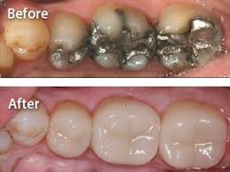 1 Appointment Dental Crown
