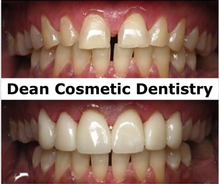 Dean Cosmetic Dentistry